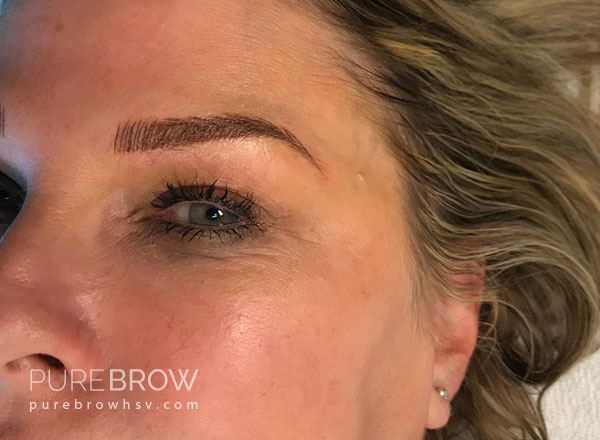 03b-microblading-before-after