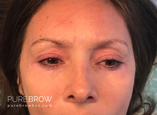 011a-microblading-before-after