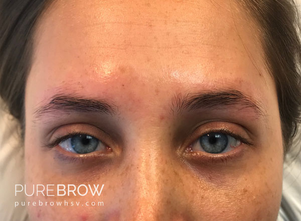 015a-microblading-before-after